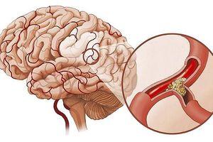Dấu hiệu sớm của bệnh thiếu máu não