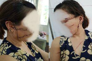 Người vợ bị chồng rạch mặt, sẹo chằng chịt trên mặt: 'Phép màu nào cho tôi lấy lại gương mặt cha sinh mẹ đẻ?'