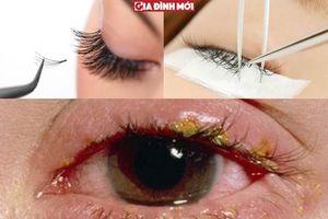 Bác sĩ BV Mắt phân tích lợi, hại của việc nối mi mắt