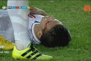U23 Việt Nam chiến thắng nhưng Quang Hải đã phải đổ máu trên sân
