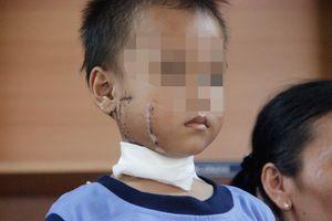 Cậu bé bị cánh quạt công nghiệp chém vào mặt, phải đi 3 bệnh viện