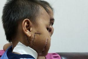 Bé trai 6 tuổi bị cánh quạt công nghiệp 'chém' rách mặt và cổ
