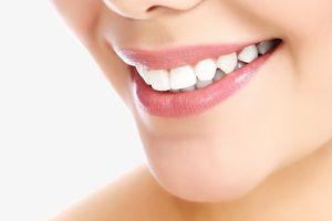 Cách 'đánh bay' cao răng tại nhà bạn nên thử