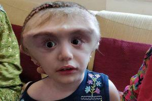 Cô bé 2 tuổi có đầu to như quả bóng bất động