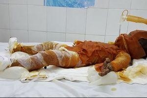 Bé gái 20 tháng tuổi bị bỏng nặng do đốt rác gây cháy nhà