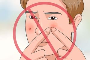 Thủ thuật để loại bỏ mụn nhọt cứng đầu