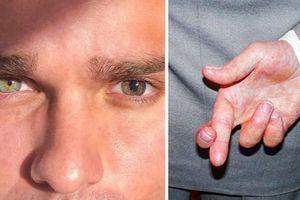7 siêu năng lực mà chỉ người bị rối loạn lo âu sở hữu