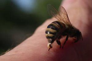 Làm dịu vết ong chích bằng những cách đơn giản