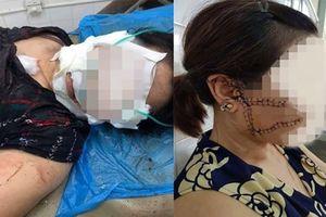 Giám định lại sức khỏe người vợ bị 'chồng hờ' rạch mặt, cắt gân chân