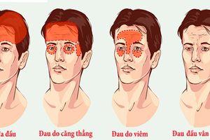 Các loại đau đầu thường gặp và cách điều trị hiệu quả