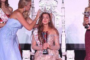 Nhan sắc cô gái mất thích giác đăng quang Hoa hậu Anh 2018