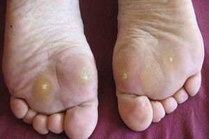 Đông y chữa bệnh chai chân