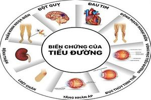 7 nguyên nhân dễ mắc bệnh tiểu đường tuýp 2 nằm ngoài tầm kiểm soát