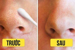 8 mẹo tự nhiên loại bỏ mụn đầu đen và mụn đầu trắng nhanh, hiệu quả