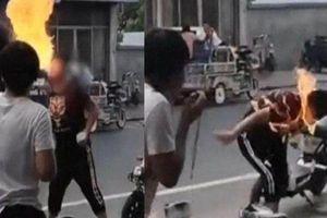 Thiếu niên bị cháy cả gương mặt khi biểu diễn ngậm dầu phun lửa