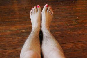 Căn bệnh nguy hiểm khiến lông mọc rậm bất thường
