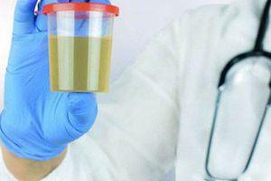 10 bí mật về nước tiểu liên quan đến thận, sức khỏe