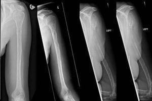 Bí ẩn hội chứng xương biến mất mà không rõ lý do