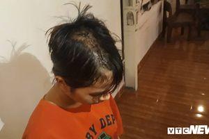 Bị nhóm thanh niên truy sát, bé gái 14 tuổi phải khâu gần 30 mũi