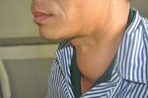 Báo động gia tăng bệnh nhân mắc u tuyến giáp: 9 tháng tiếp nhận 400 ca