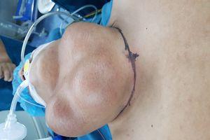 Cắt bướu giáp 'khủng' 2 kg cứu sống bệnh nhân