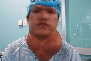 Cắt bỏ thành công khối u 'khổng lồ' cho nam bệnh nhân