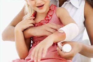 Sẹo bỏng nước sôi ở trẻ, nên chữa trị bằng cách nào?