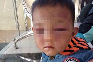 Thông tin mới vụ cha dượng đánh con riêng của vợ bầm tím mặt
