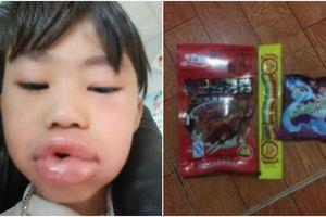 Bé trai sưng vêu miệng, phải nhập viện sau khi ăn kẹo trước cổng trường