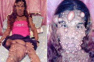 Nỗi đau của người phụ nữ nổi u như 'bong bóng' chi chít từ mặt tới chân