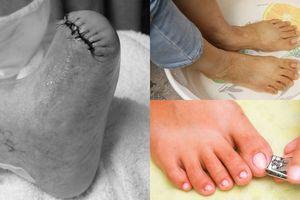 Chuyên gia y tế cảnh báo cắt móng không đúng cách cũng có nguy cơ cụt chân!