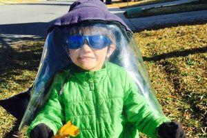 Bệnh lạ khiến cậu bé chỉ cần tiếp xúc với một tia nắng cũng nguy hiểm sức khỏe