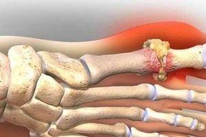 Những đồ ăn làm giảm cơn đau của người bệnh gút