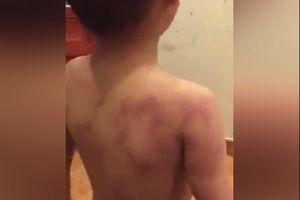 Phụ huynh tố cô giáo mầm non đánh con trai bầm tím lưng