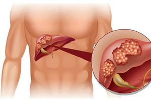 MEDLATEC tiên phong ứng dụng công nghệ Nhật chẩn đoán sớm ung thư gan