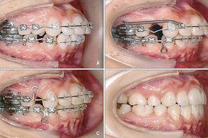 Chân răng lệch ra ngoài ổ xương vì niềng răng