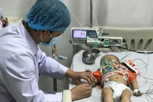 Trẻ co cứng toàn thân, mắt trợn ngược vì viêm màng não