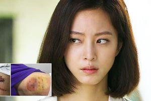 Mỹ nhân Han Ye Seul bị lở loét sau phẫu thuật