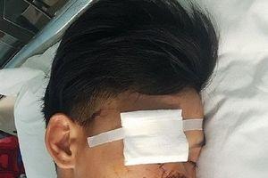 Quảng Bình: 'Hổ báo' với đàn anh, trai làng bị chém gục tại quán nước