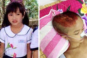Bé 7 tuổi di chứng nặng sau tai nạn