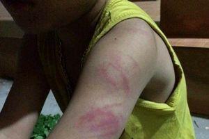 Thái Bình: Vì sao học sinh bị cô giáo đánh thâm tím tay?