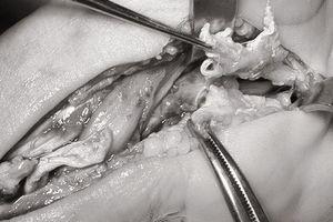 Cổ tay 'bầy nhầy' vì chích corticoid trị hội chứng ống cổ tay