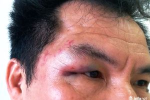 Trưởng đại diện Tạp chí Hòa nhập bị đánh túi bụi tại Nghệ An