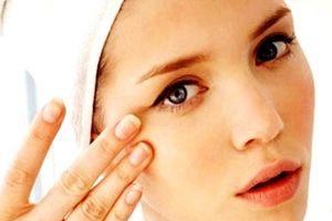 Căng da thừa mí mắt dưới kèm lấy mỡ thừa