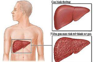 Viêm gan B nguy hiểm như thế nào?