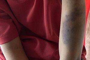 Bé trai bị bố và mẹ kế đánh tím đen cơ thể vì đi đá bóng