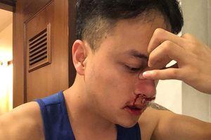 Ca sĩ Cao Thái Sơn phải hủy show diễn tại Australia, đi cấp cứu lúc nửa đêm