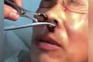 'Rùng mình' cảnh bác sĩ gắp cả con đỉa ký sinh trong mũi người đàn ông
