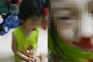 Bé gái bị mẹ đánh chảy máu mũi rồi livestream: Cô giáo cho hay bé rất ít nói
