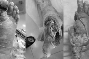 Căn bệnh hàng triệu người mắc khiến bàn chân mục ruỗng trơ xương